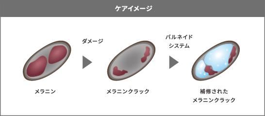 バルネイドシステムのケアイメージ画像
